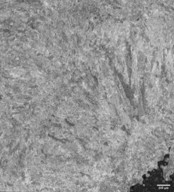 Image of 17-4 PH steel sample etched with Waterless Kalling's etchant, at 100x (10x objective)